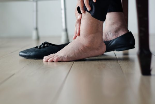 Swollen ankles - sign of heart problems