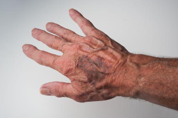Elderly bruising